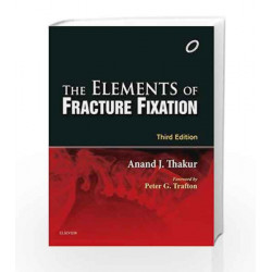 The Elements of Fracture Fixation by Thakur Book-9788131242360