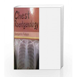 Chest Roentgenology by DR. YOGENDRA SINGH Book-9789374734872