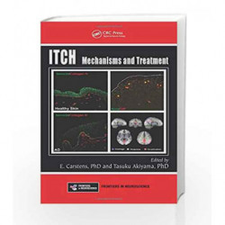 Itch: Mechanisms and Treatment (Frontiers in Neuroscience) by Carstens Book-9781466505438