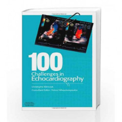 100 Challenges in Echocardiography by Klimczak Book-9780443069277