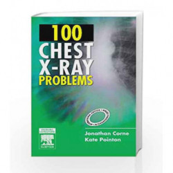 100 Chest X-Ray Problems by Corne J Book-9780443103773