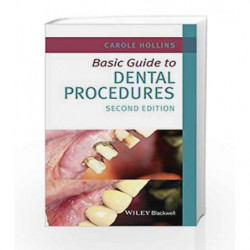 Basic Guide to Dental Procedures (Basic Guide Dentistry Series) by Hollins C. Book-9781118924556