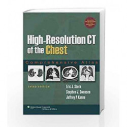 High-Resolution Ct Of The Chest: Comprehensive Atlas / Edition 3 by Stern C.W Book-9780781791908