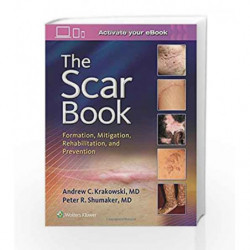 The Scar Book: Formation, Mitigation, Rehabilitation and Prevention by Krakowski A C Book-9781496322388